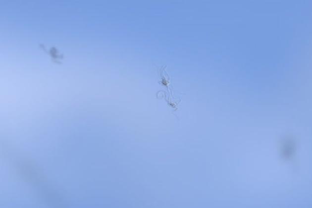 centre-oftalmologic-moscas-volantes