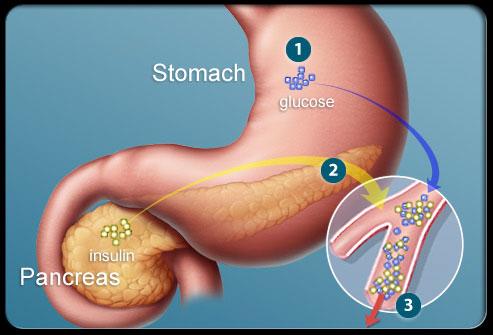 esquema diabetes