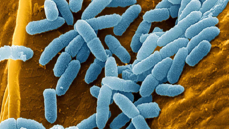 las-doce-bacterias-mas-peligrosas-y-nos-estamos-quedando-sin-cura-2