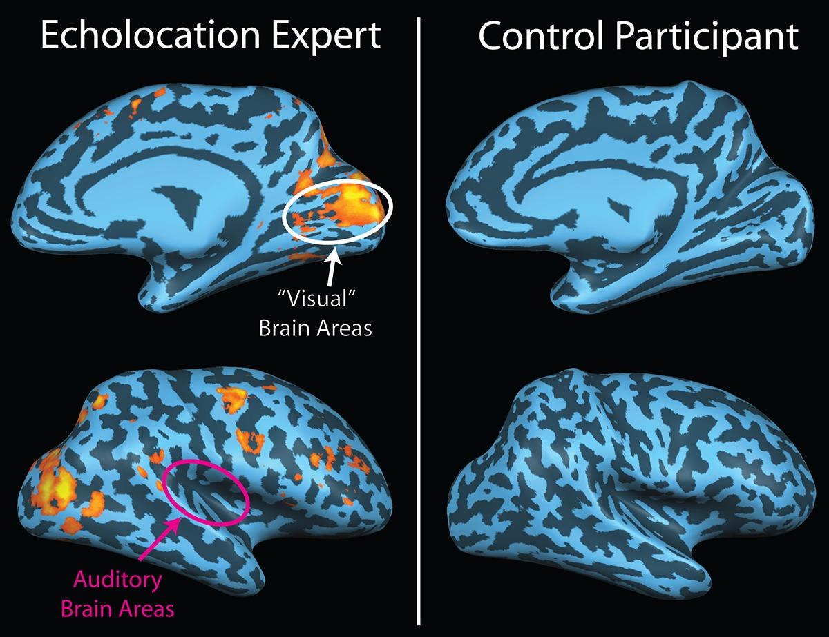 dolphin brain