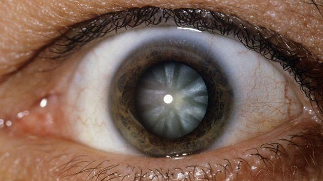 160309230208_el_tratamiento_aprovecha_clulas_madre_para_regenerar_el_cristalino_de_los_ojos_de_forma_natural_624x351_sciencephotolibrary_nocredit